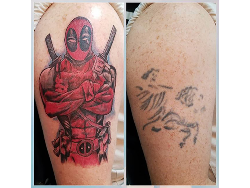 tattoo cover-ups